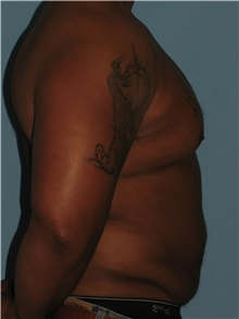 Body Contouring After Photo by Paul Vanek, MD, FACS; Mentor, OH - Case 32782