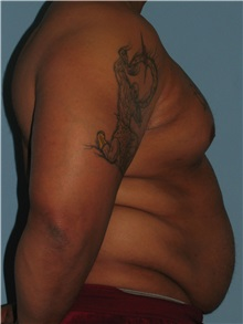 Body Contouring Before Photo by Paul Vanek, MD, FACS; Mentor, OH - Case 32782