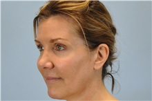 Botulinum Toxin After Photo by Paul Vanek, MD, FACS; Mentor, OH - Case 32791