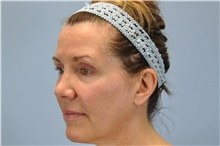 Botulinum Toxin Before Photo by Paul Vanek, MD, FACS; Mentor, OH - Case 32791