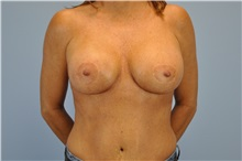 Breast Reconstruction After Photo by Paul Vanek, MD, FACS; Mentor, OH - Case 32799