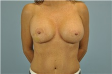 Breast Reconstruction Before Photo by Paul Vanek, MD, FACS; Mentor, OH - Case 32799