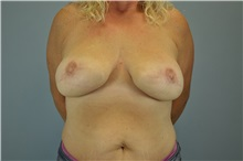 Breast Reconstruction After Photo by Paul Vanek, MD, FACS; Mentor, OH - Case 32800