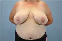 Breast Reconstruction Before Photo by Paul Vanek, MD, FACS; Mentor, OH - Case 32800
