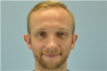 Ear Surgery Before Photo by Paul Vanek, MD, FACS; Mentor, OH - Case 32801