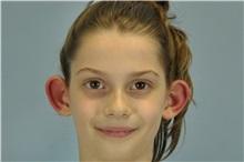 Ear Surgery Before Photo by Paul Vanek, MD, FACS; Mentor, OH - Case 32804