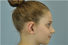 Ear Surgery After Photo by Paul Vanek, MD, FACS; Mentor, OH - Case 32804