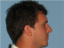 Rhinoplasty After Photo by Paul Vanek, MD, FACS; Mentor, OH - Case 32855