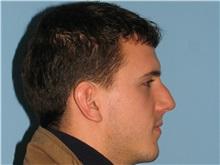 Rhinoplasty Before Photo by Paul Vanek, MD, FACS; Mentor, OH - Case 32855