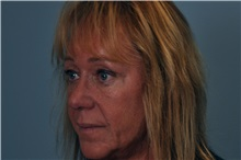 Eyelid Surgery After Photo by Paul Vanek, MD, FACS; Mentor, OH - Case 32859