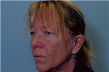 Eyelid Surgery Before Photo by Paul Vanek, MD, FACS; Mentor, OH - Case 32859