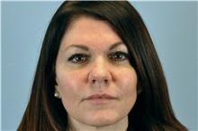 Lip Augmentation / Enhancement After Photo by Paul Vanek, MD, FACS; Mentor, OH - Case 33567