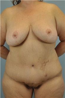 Body Lift After Photo by Paul Vanek, MD, FACS; Mentor, OH - Case 33569