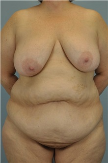 Body Lift Before Photo by Paul Vanek, MD, FACS; Mentor, OH - Case 33569
