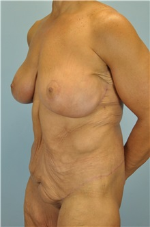 Body Lift After Photo by Paul Vanek, MD, FACS; Mentor, OH - Case 33570