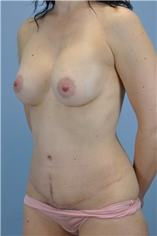 Body Contouring After Photo by Paul Vanek, MD, FACS; Mentor, OH - Case 33572