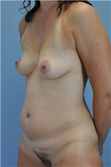 Body Contouring Before Photo by Paul Vanek, MD, FACS; Mentor, OH - Case 33572