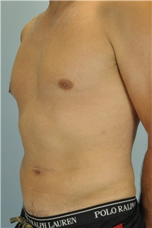 Liposuction After Photo by Paul Vanek, MD, FACS; Mentor, OH - Case 33579