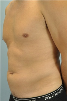 Liposuction Before Photo by Paul Vanek, MD, FACS; Mentor, OH - Case 33579