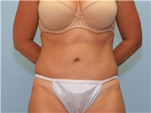 Tummy Tuck After Photo by Paul Vanek, MD, FACS; Mentor, OH - Case 33581