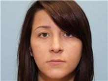 Lip Augmentation / Enhancement After Photo by Paul Vanek, MD, FACS; Mentor, OH - Case 34022