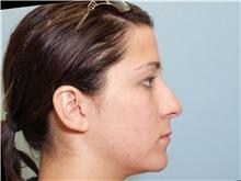 Lip Augmentation / Enhancement Before Photo by Paul Vanek, MD, FACS; Mentor, OH - Case 34022