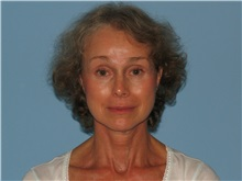 Facelift After Photo by Paul Vanek, MD, FACS; Mentor, OH - Case 34028