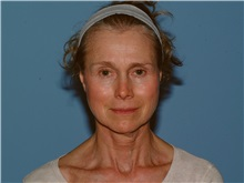 Facelift Before Photo by Paul Vanek, MD, FACS; Mentor, OH - Case 34028