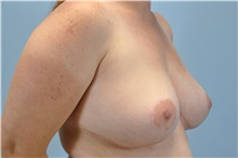 Breast Reduction After Photo by Paul Vanek, MD, FACS; Mentor, OH - Case 34029