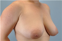 Breast Reduction Before Photo by Paul Vanek, MD, FACS; Mentor, OH - Case 34029
