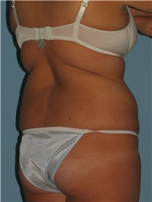 Liposuction Before Photo by Paul Vanek, MD, FACS; Mentor, OH - Case 34032
