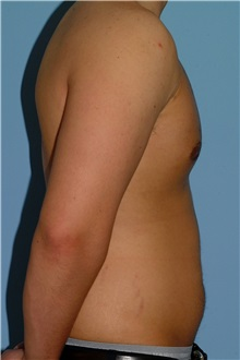Male Breast Reduction After Photo by Paul Vanek, MD, FACS; Mentor, OH - Case 34036