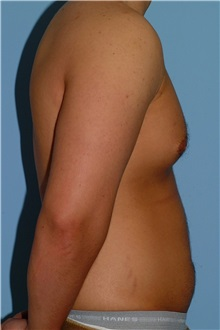 Male Breast Reduction Before Photo by Paul Vanek, MD, FACS; Mentor, OH - Case 34036