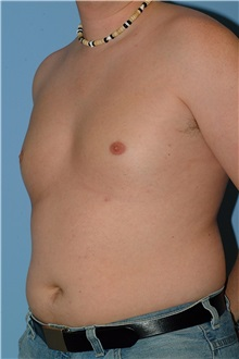 Male Breast Reduction After Photo by Paul Vanek, MD, FACS; Mentor, OH - Case 34233