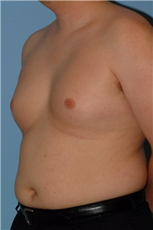 Male Breast Reduction Before Photo by Paul Vanek, MD, FACS; Mentor, OH - Case 34233