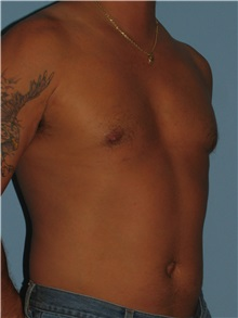 Male Breast Reduction After Photo by Paul Vanek, MD, FACS; Mentor, OH - Case 34235