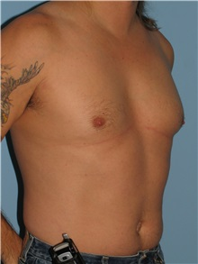 Male Breast Reduction Before Photo by Paul Vanek, MD, FACS; Mentor, OH - Case 34235