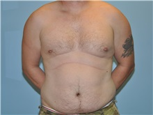 Male Breast Reduction After Photo by Paul Vanek, MD, FACS; Mentor, OH - Case 34296
