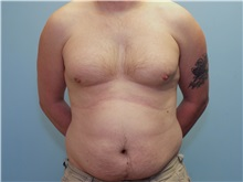 Male Breast Reduction Before Photo by Paul Vanek, MD, FACS; Mentor, OH - Case 34296