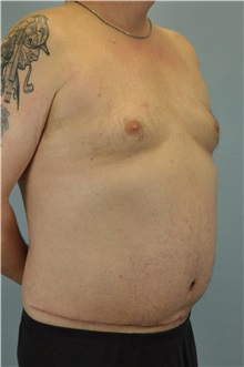 Body Contouring After Photo by Paul Vanek, MD, FACS; Painesville, OH - Case 34298