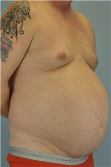 Body Contouring Before Photo by Paul Vanek, MD, FACS; Painesville, OH - Case 34298