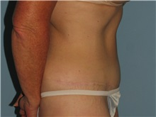 Tummy Tuck After Photo by Paul Vanek, MD, FACS; Mentor, OH - Case 35127