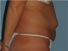 Tummy Tuck Before Photo by Paul Vanek, MD, FACS; Mentor, OH - Case 35127