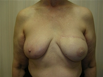 Breast Reconstruction After Photo by Frank Ferraro, MD; Paramus, NJ - Case 23494