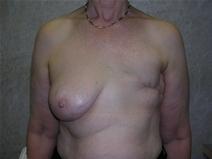 Breast Reconstruction Before Photo by Frank Ferraro, MD; Paramus, NJ - Case 23494