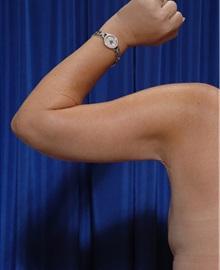 Arm Lift After Photo by Kamran Khoobehi, MD; Metairie, LA - Case 35481