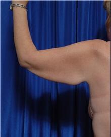 Arm Lift Before Photo by Kamran Khoobehi, MD; Metairie, LA - Case 35481
