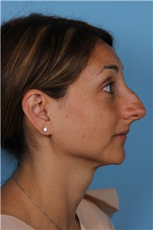 Rhinoplasty Before Photo by Homayoun Sasson, MD, FACS; Great Neck, NY - Case 31729