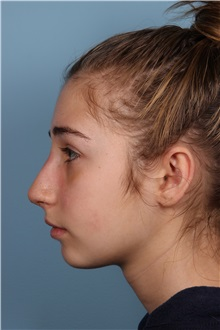 Rhinoplasty After Photo by Homayoun Sasson, MD, FACS; Great Neck, NY - Case 31730
