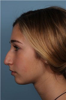Rhinoplasty Before Photo by Homayoun Sasson, MD, FACS; Great Neck, NY - Case 31730